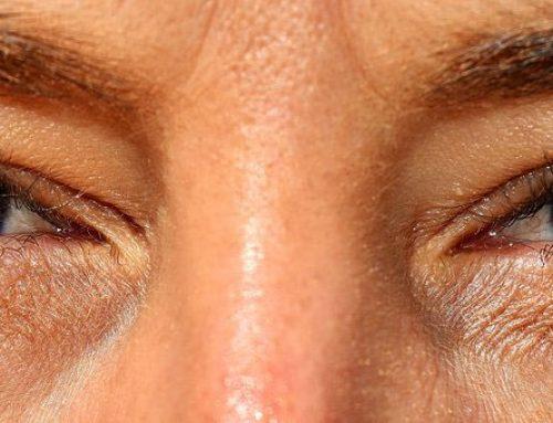 Semana Mundial do Glaucoma alerta sobre a doença