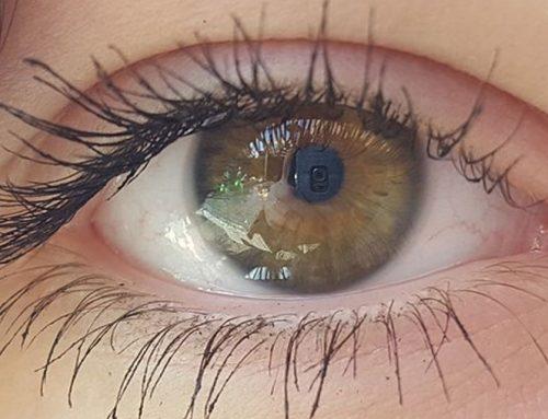Problema ocular afeta estrutura da córnea e pode comprometer visão