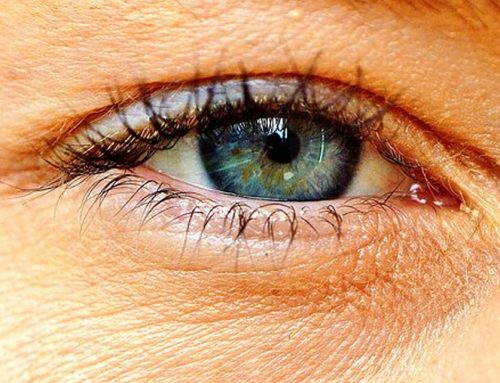 Se não tratada, rosácea ocular pode comprometer a visão